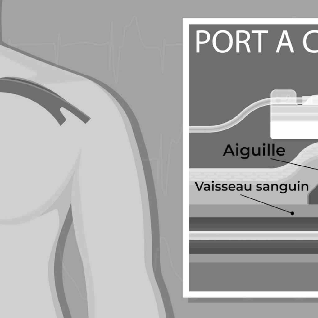 pose-pot-a-cath-chambre-implatable-radiologie-interventionnelle-ocean-imagerie.jpg